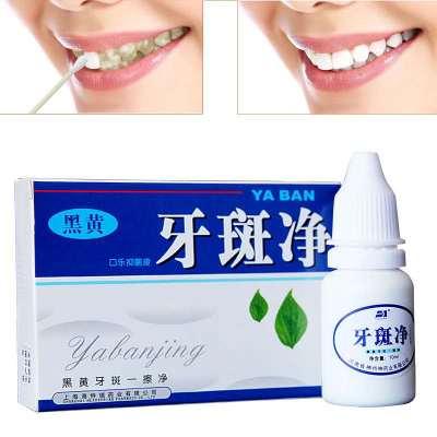 【一擦就白】牙斑净速效去除渍茶渍食物色素等引起的黑黄牙 10ml【3月11日发完】